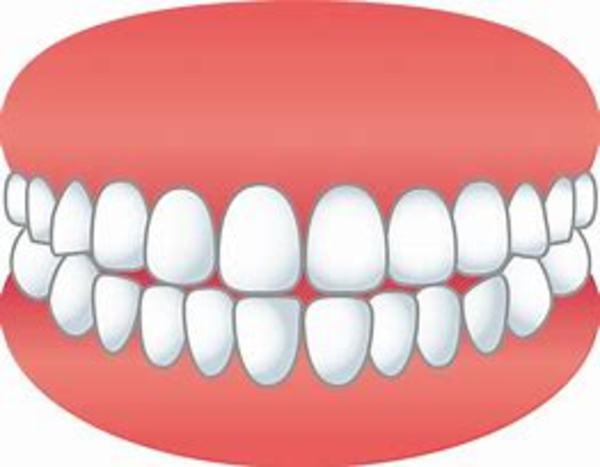 歯並びを良くするのは姿勢が大事?